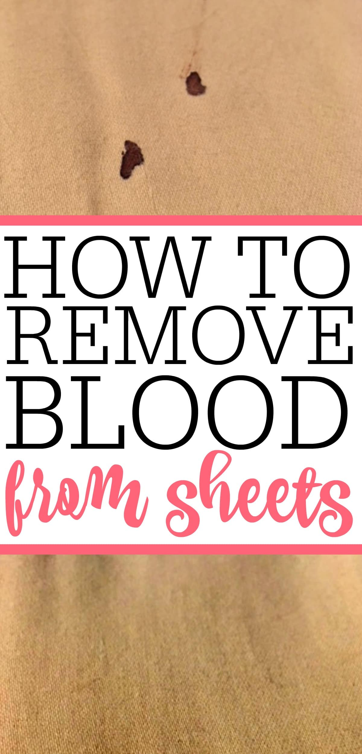 How To Get Dry Blood Stains Out Of White Clothes